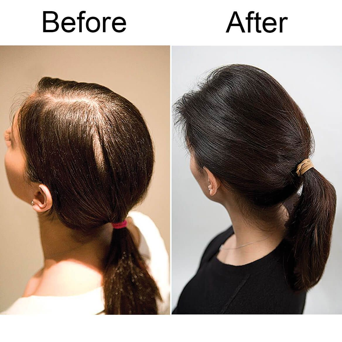 Viviscal® Hair Nutrient Tablets-328916