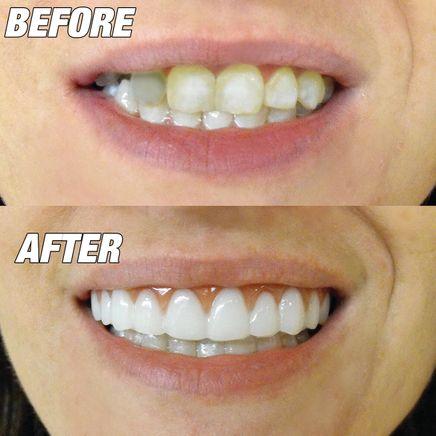 Instant Smile™ Comfort Fit Flexible Upper Veneer-366589