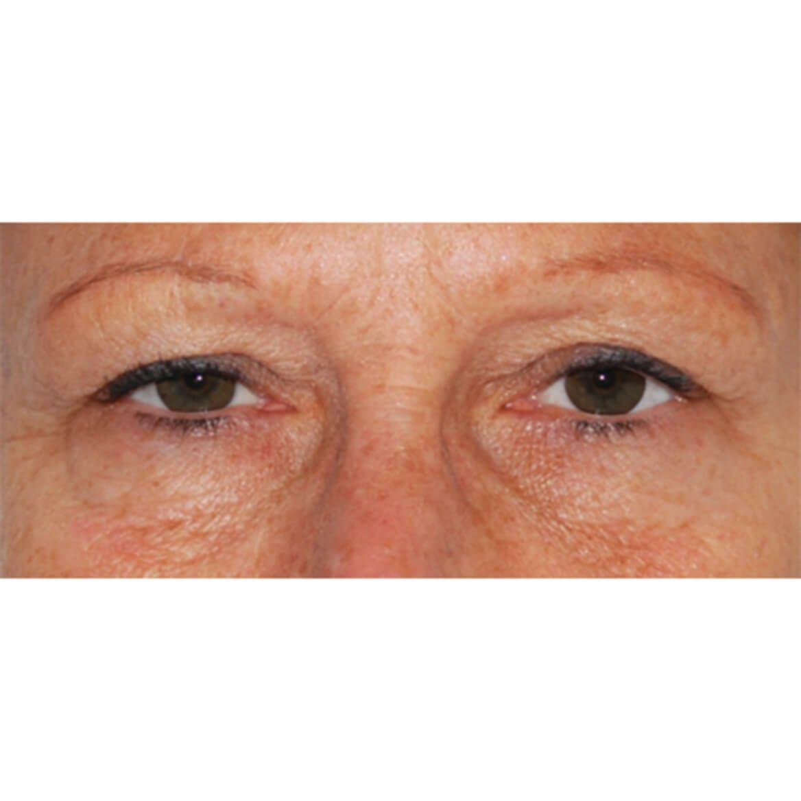 DermeCeuticals Corrective Firming Eyelid Lift-369216