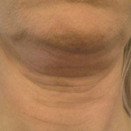 DermeCeuticals Neck Firming & Chin Lift-369217