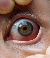 ailmentPhotoEpiscleritis.jpg